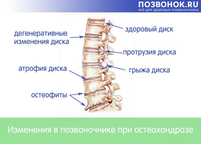 Повреждение костно-хрящевой структуры позвоночника при остеохондрозе